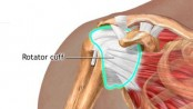 Shoulder pain may indicate higher heart disease risk: study